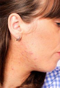 acne-treatment-pittsburgh-dermatologist