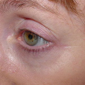 affir laser crowsfeet after pic pittsburgh dermatologist.jpg