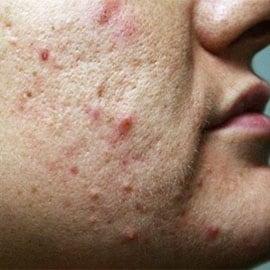 affirm treatment acne scars
