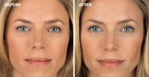 juvederm-before-after-pittsburgh-dermatologist